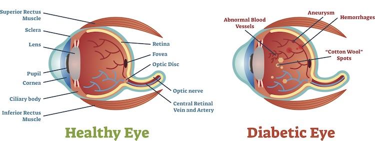 Graphic diagram of a diabetic eye vs a healthy eye