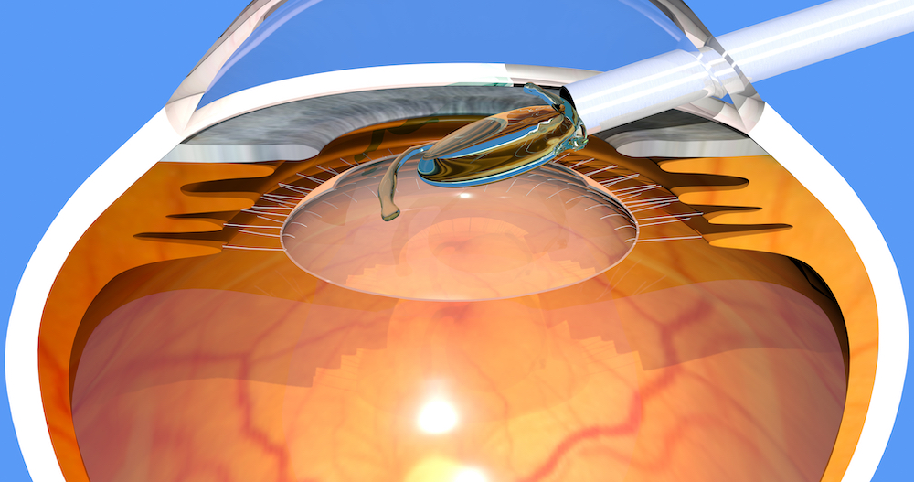 Diagram of implantable contact lens
