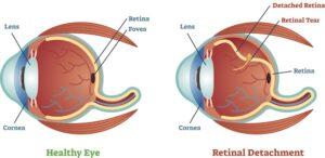 Graphic diagram of a detached retina vs a healthy eye