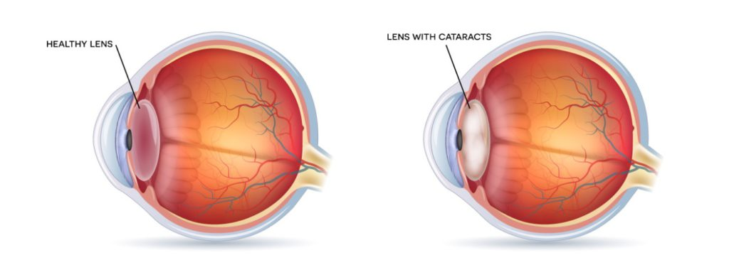 Diagram of cataracts